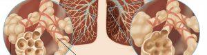 Alveole pulmonare in contextul emfizemului pulmonar